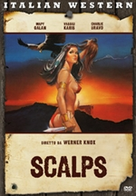 scalps-prew